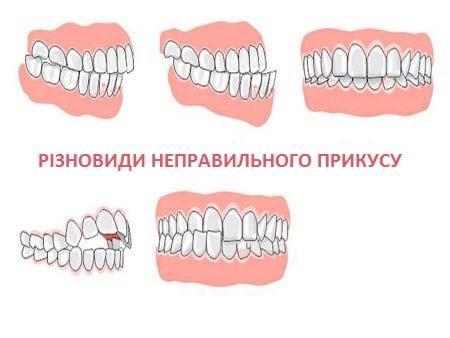 raznovidnosti-nepravilnogo-prikusa-zubov