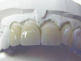Мостоподібний протез