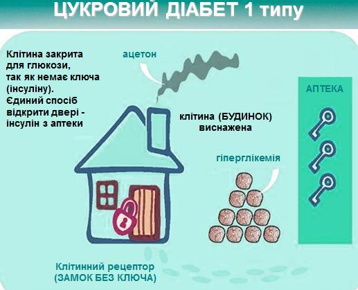 ДІАБЕТ 4