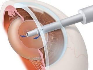 Заміна кришталика ока