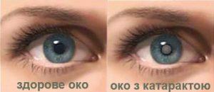 Як виглядає катаракта