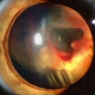 Відшарування сітківки ока
